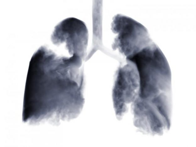 x-ray-of-lungs-with-tumors-showing